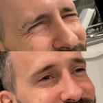 botox man before after eyes
