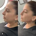 Dermal filler before and after cheeks